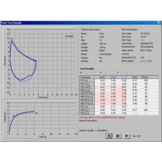 Software espirometría