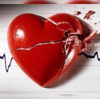 Factors de Risc Cardiovascular i  Malaltia Arterial Perifèrica MAP