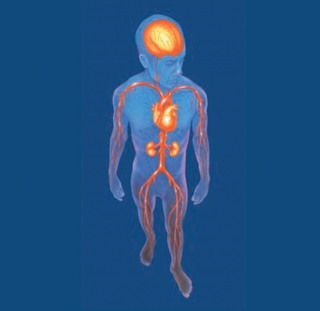 Malaltia Arterial Perifèrica MAP, habitualment asimptomàtica